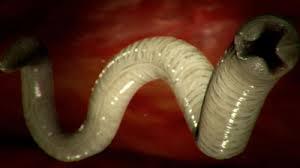 paraziti u crevima)