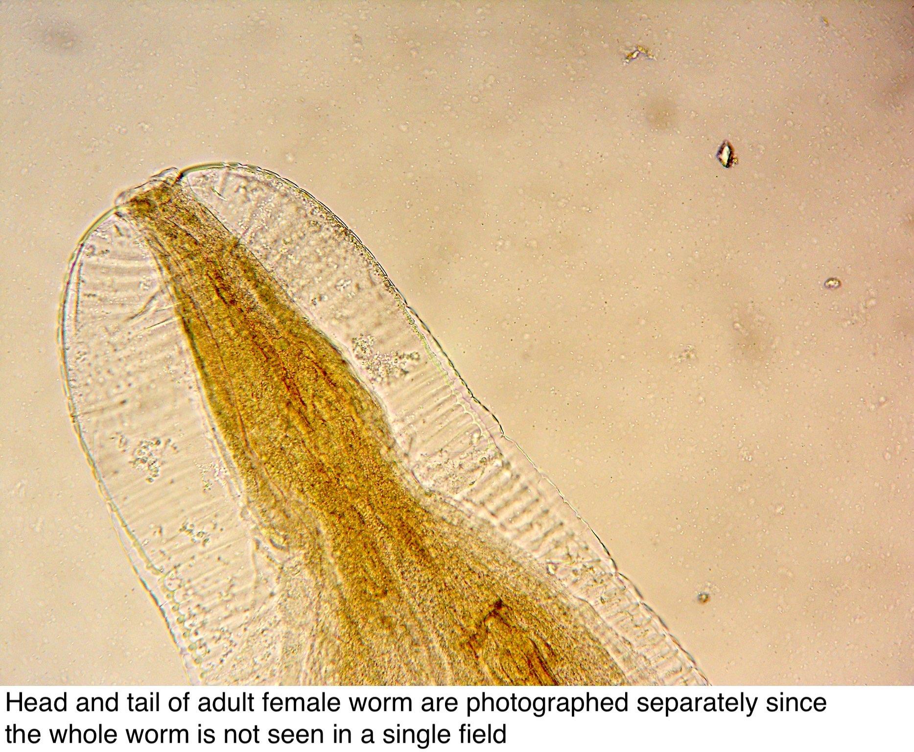 enterobius vermicularis ou oxyure
