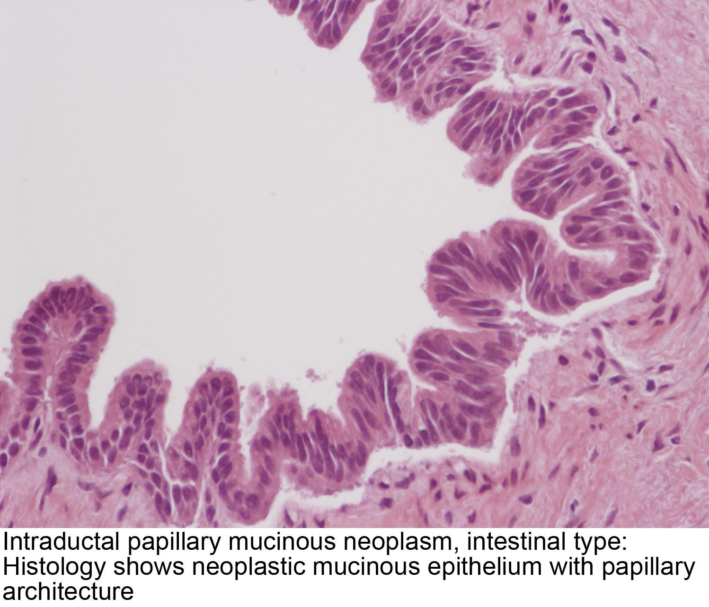 pancreatic cancer pathology outlines)