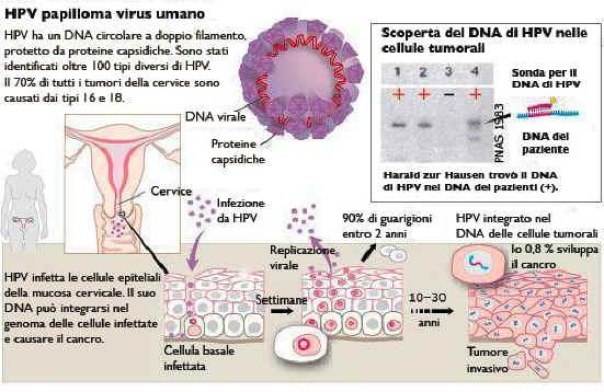 infezione virale papilloma virus