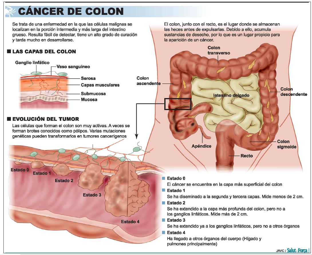 cancer de colon en sintomas)