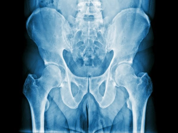 cancer de prostata que se extiende a los huesos