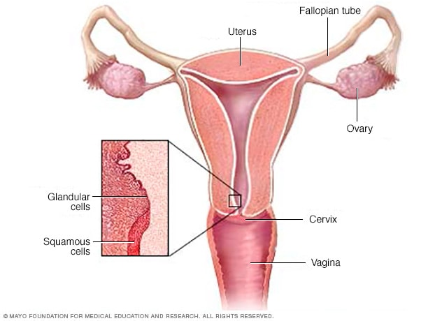 cancer cervical que causa)