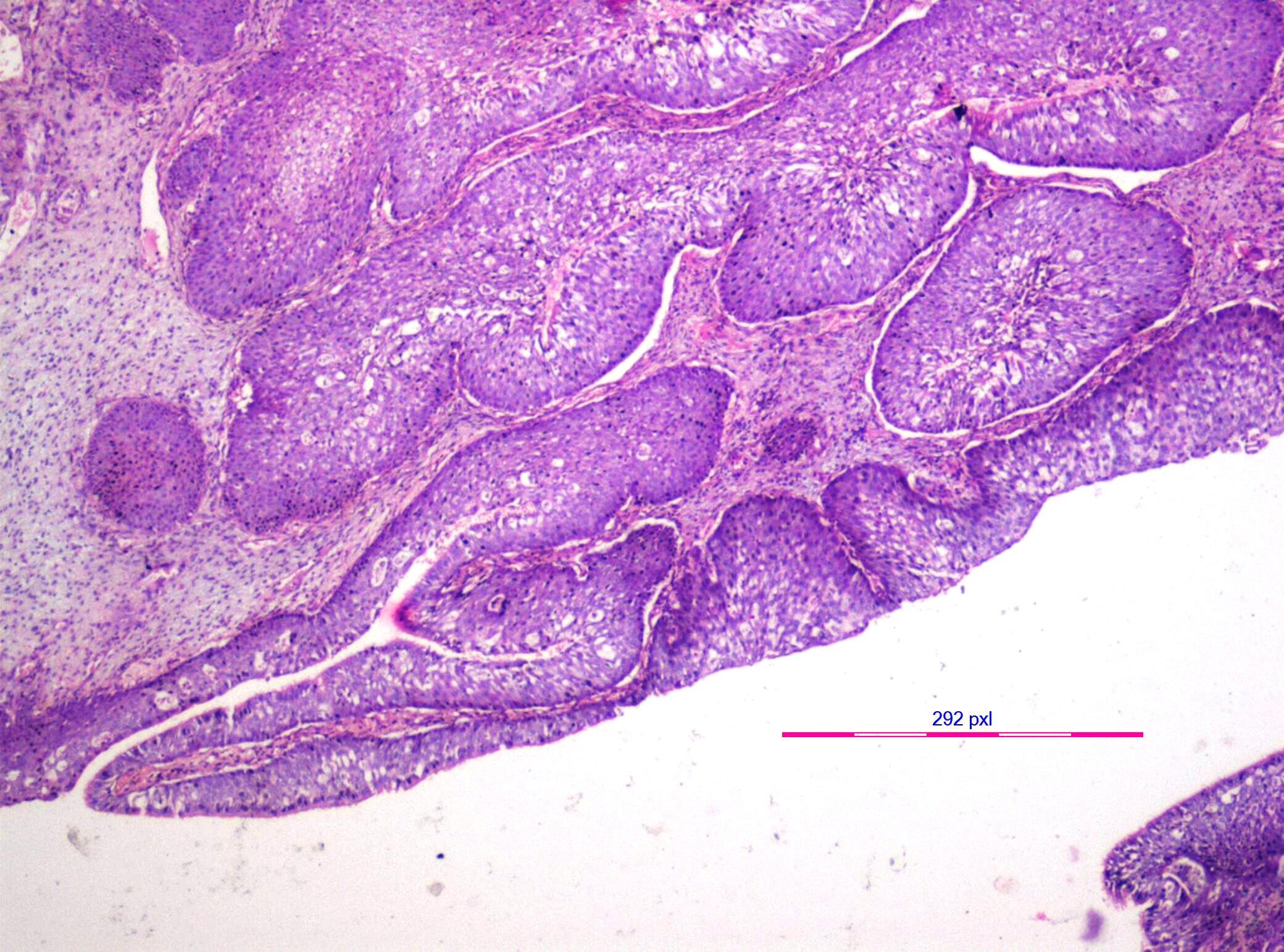schneiderian papilloma malignant