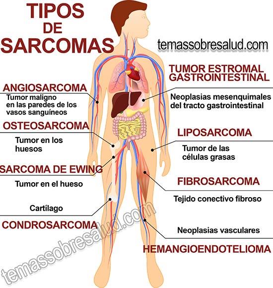 sarcoma cancer what is it con il papilloma virus si puo rimanere incinta