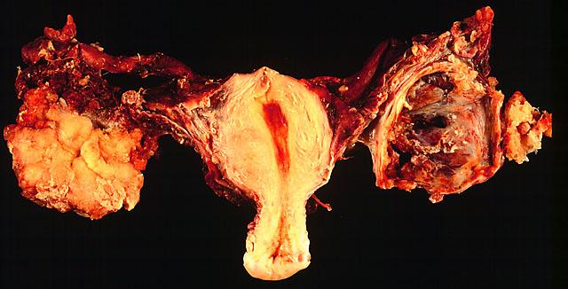 Metastaza – Ce sunt metastazele canceroase