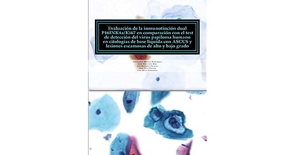 virus del papiloma humano test