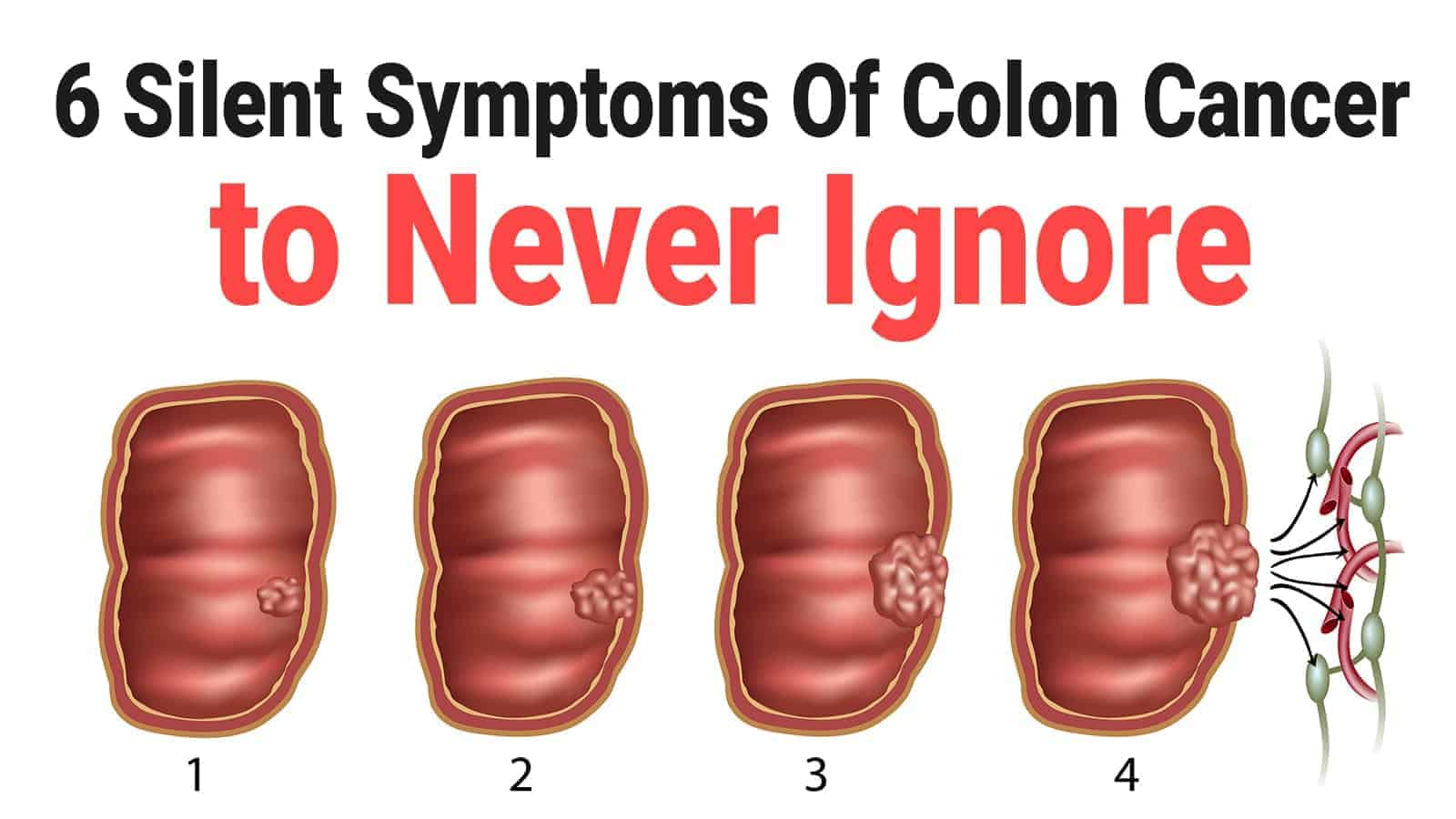 6 colorectal cancer)