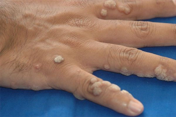 warts on hands surgery)