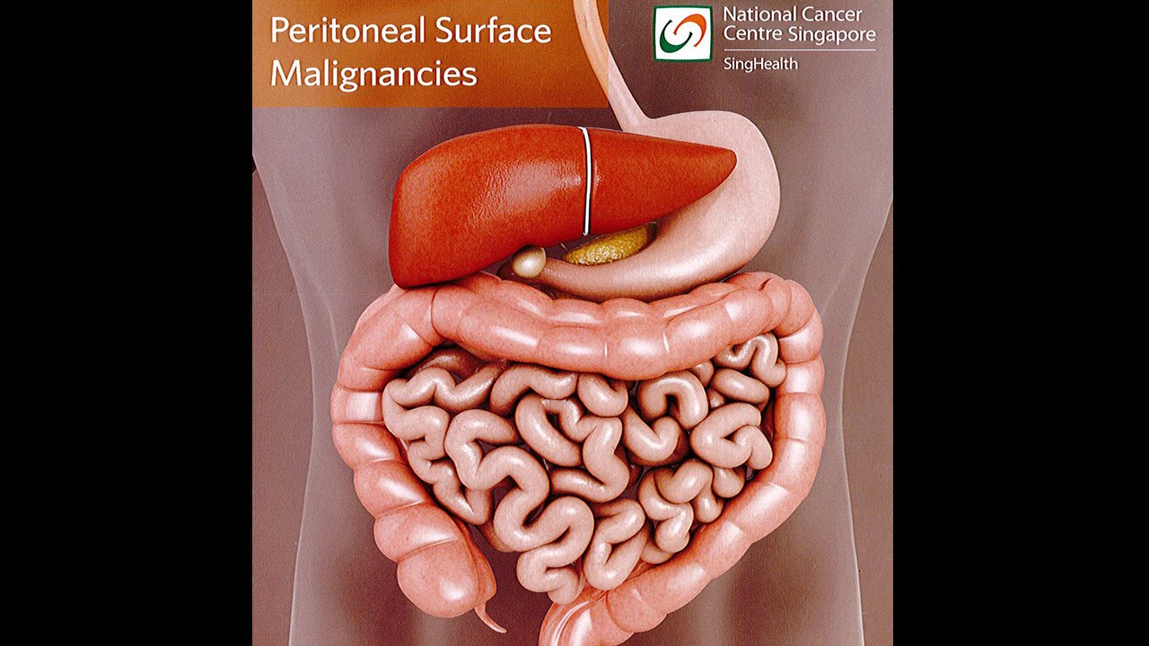 peritoneal cancer images)