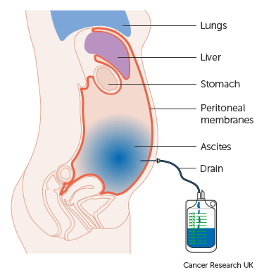 peritoneal cancer and constipation