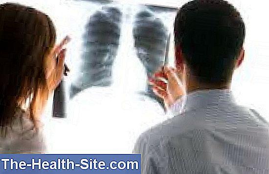 cancerul pulmonar contagios