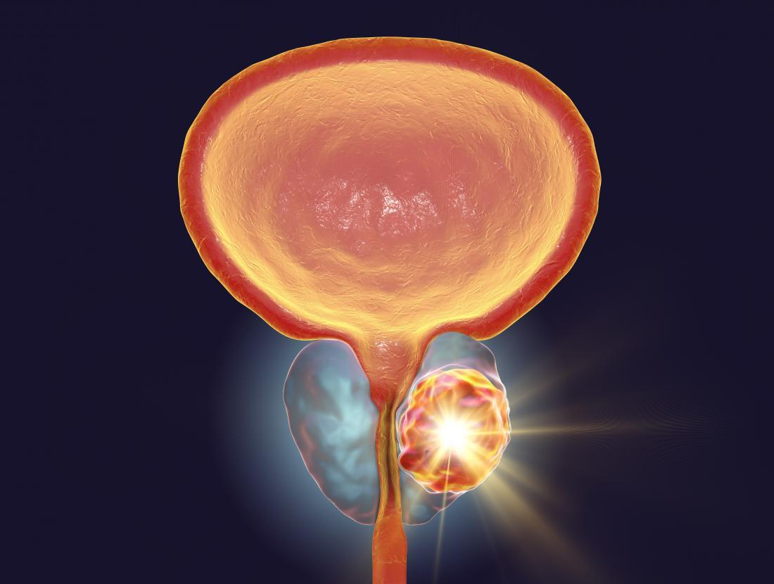aggressive cancer symptoms)