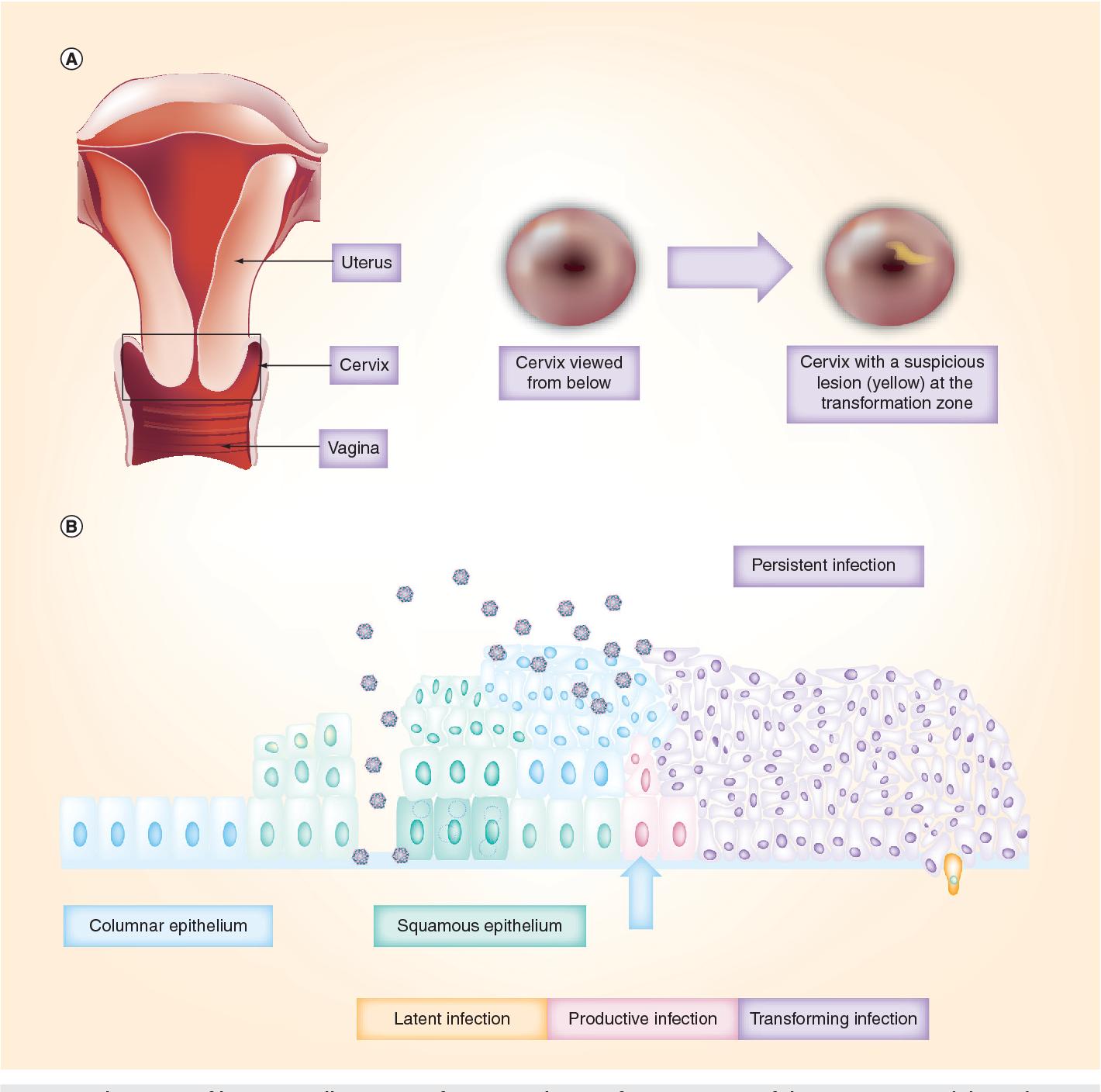 infection uterus papillomavirus)