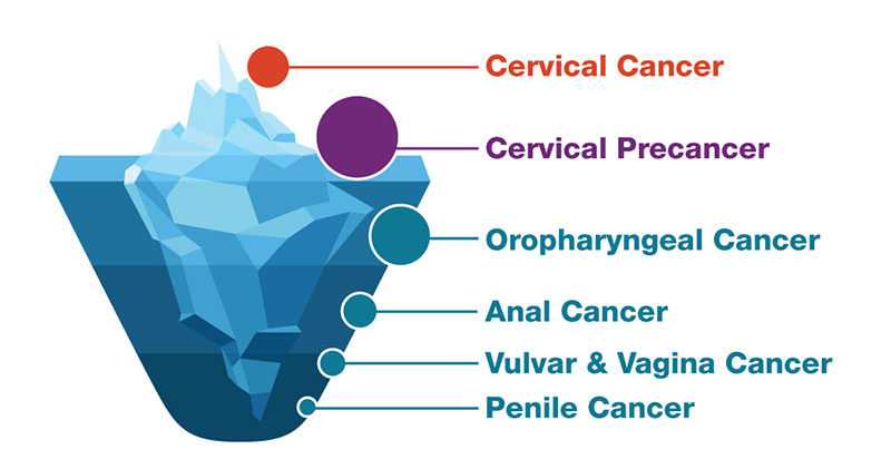 the cancer caused by the human papillomavirus (hpv) is in which group of cancers
