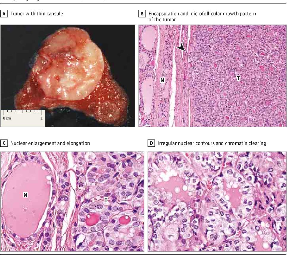 papillary thyroid cancer follicular variant infiltrative helminth disease list