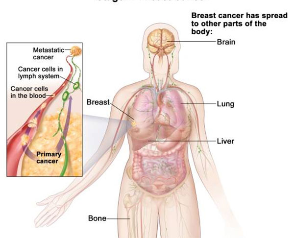 metastatic cancer growth
