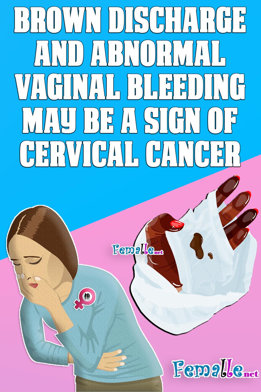 cervical cancer brown discharge uterine cancer effects