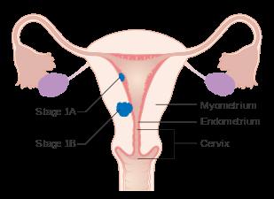 uterine cancer etiology