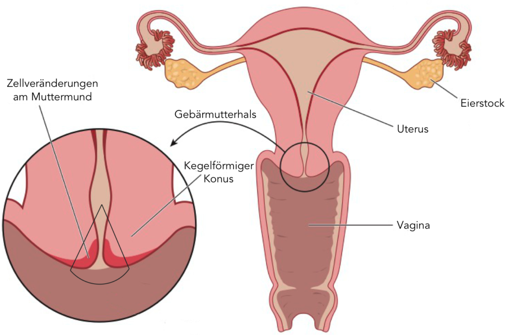 Este bun rezultatul prostata nevizualizabila
