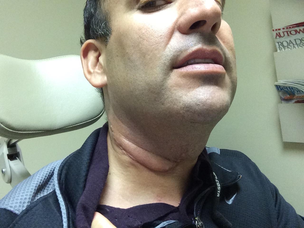 hpv neck lymph nodes