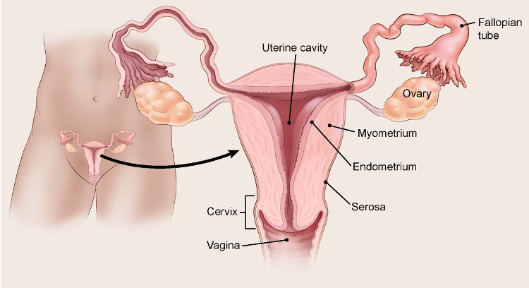 endometrial cancer leg pain)