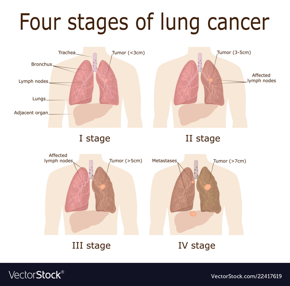 metastatic cancer fourth stage