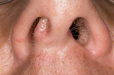 hpv nose sore