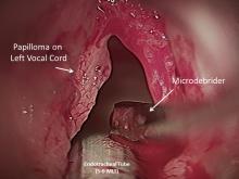 The Larynx, Volume I