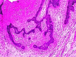 papilloma planoepitheliale keratoticum