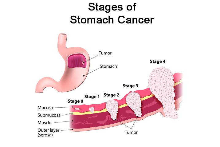 PRIMARY GASTRIC LYMPHOMA IN A PROSPECTIVE STUDY | The Medical-Surgical Journal