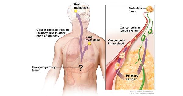 metastatic cancer no primary
