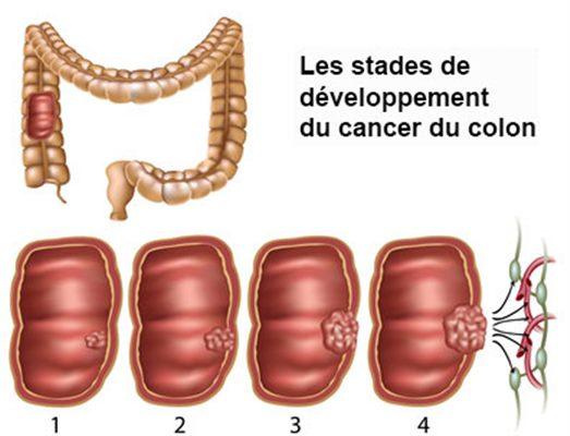 cancer colorectal femme)