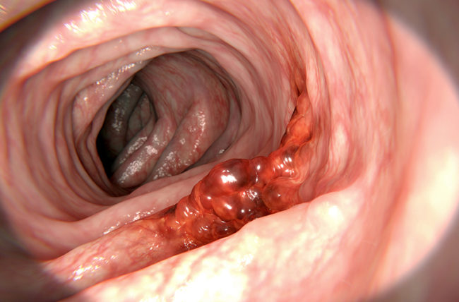 COLONOSCOPIC SCREENING OF ASYMPTOMATIC FIRST-DEGREE RELATIVES OF COLORECTAL CANCER PATIENTS