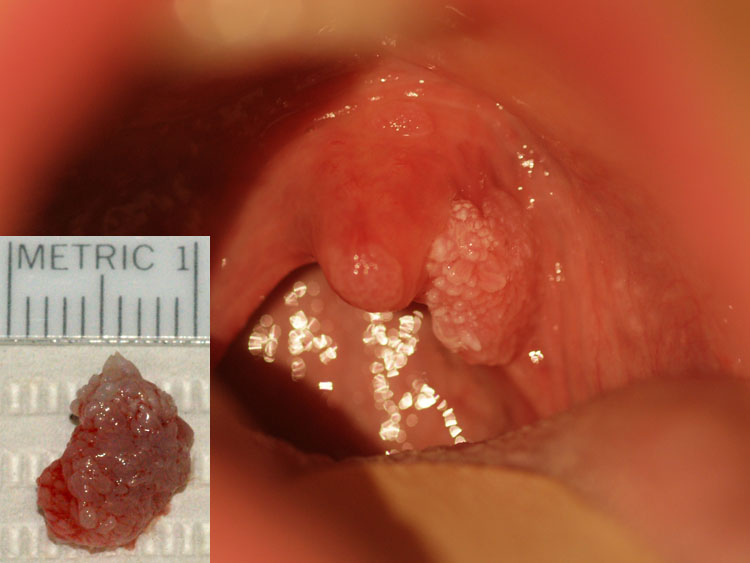 papilloma wart on my uvula