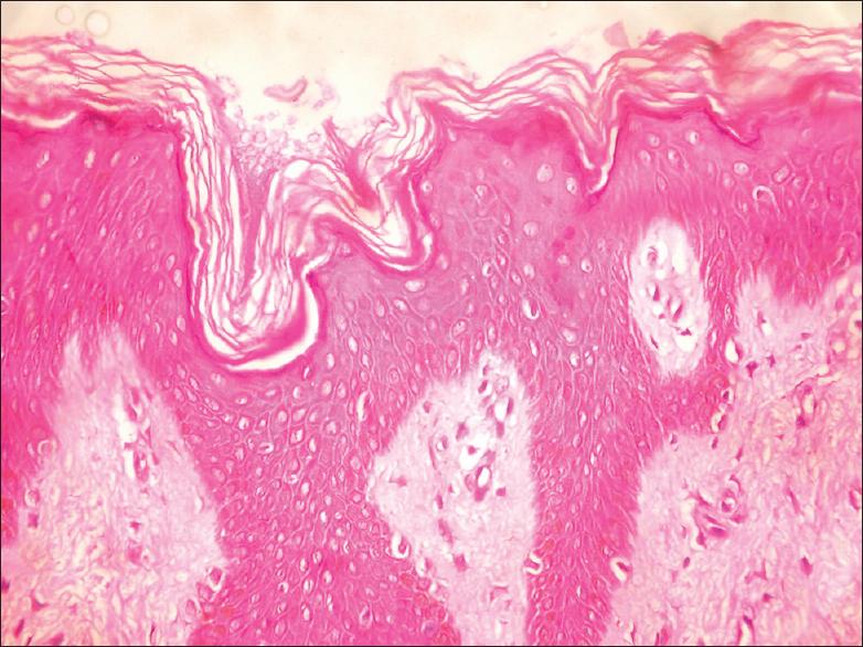 papillomatosis with hyperkeratosis