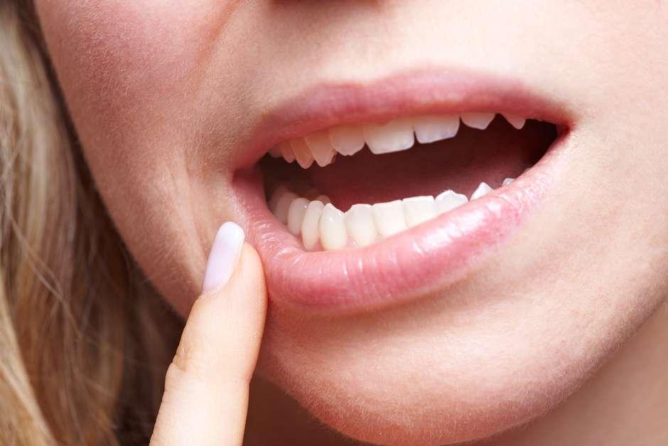 imagen del papiloma humano en la boca)