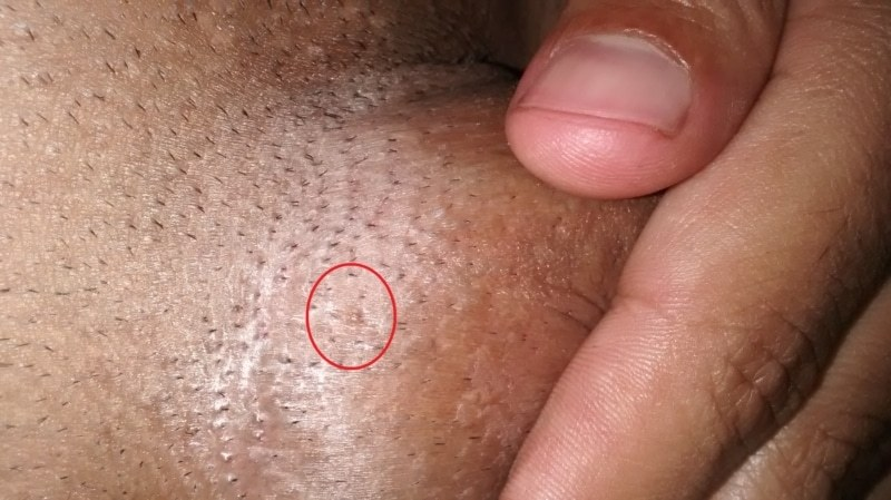 hpv genital warts male treatment