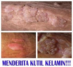 virus hpv penyebab kutil kelamin