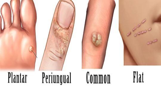 rimedi naturali per papilloma virus)