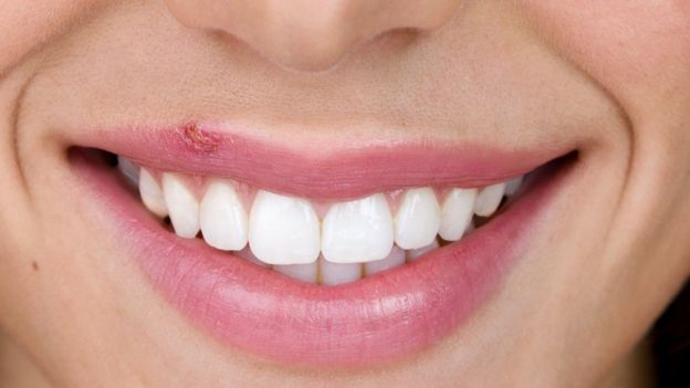 herpes labial o papiloma humano
