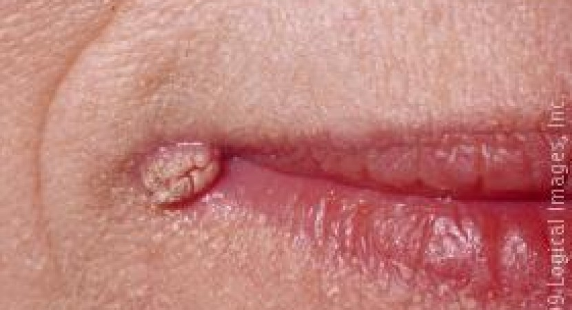 hpv warts mouth look like