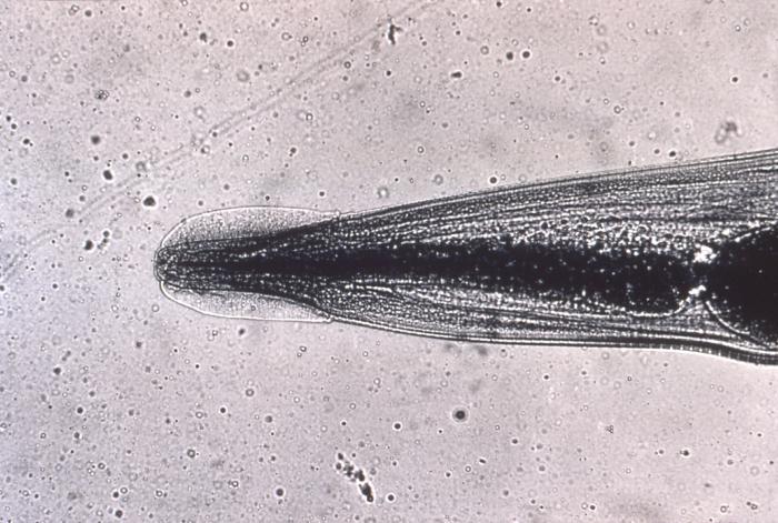 Lamblia la gravidă ,ce preparate trebuie tratate pentru viermi