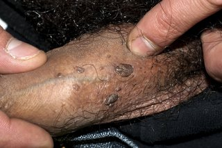 hpv warts years later)