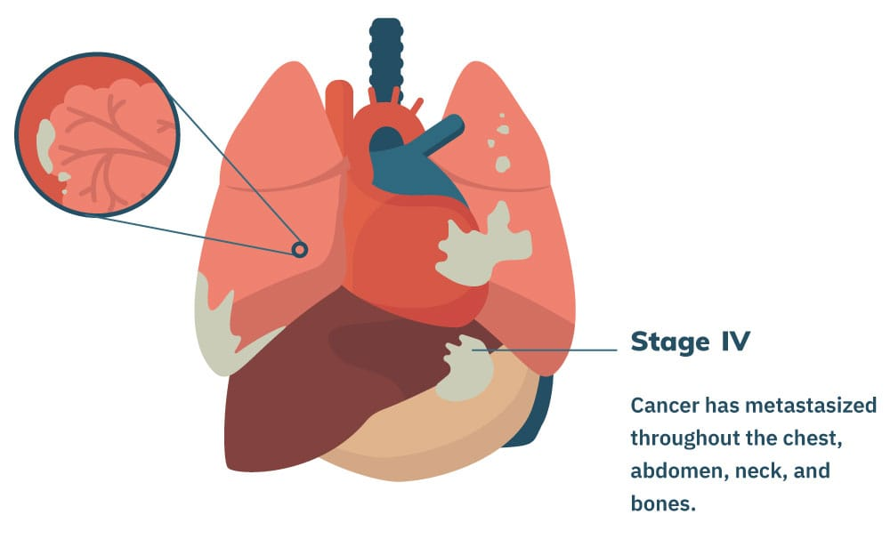 aggressive cancer stage 4)