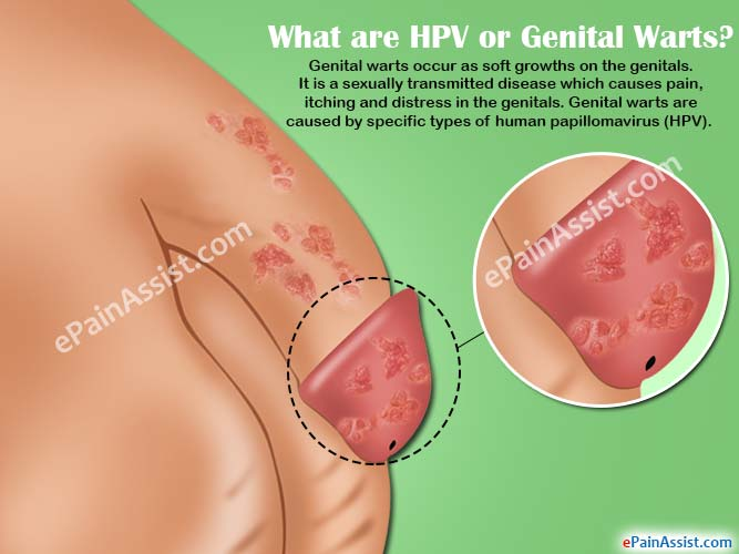 hpv treatment itching)