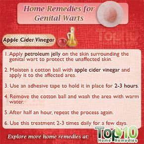 hpv wart removal apple cider vinegar