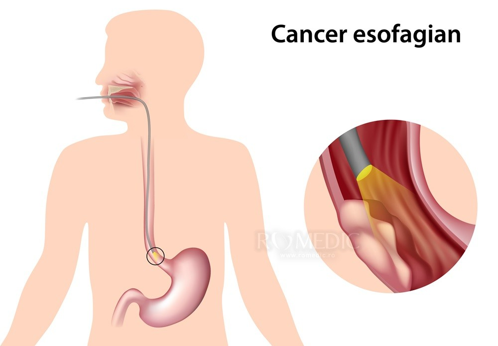 cancer pe esofag simptome)