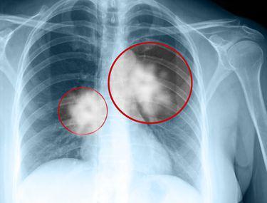 Simptome ale cancerului pulmonar