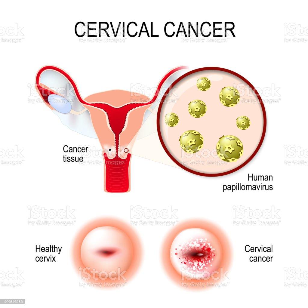 papilloma cancer de utero
